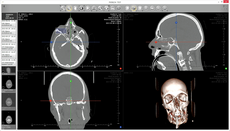 ▷ DICOM Image Viewer ◁- ExhibeonⓇ DICOM Browser 90 Days For Free :
